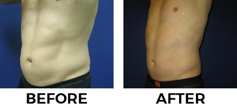 VASER Shape before and after example